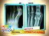 Металл с памятью формы помогает и в операции по удалению шишки на пальце стопы