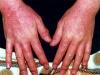 Аллергический контактный дерматит.  Мнение 7237 к объекту.
