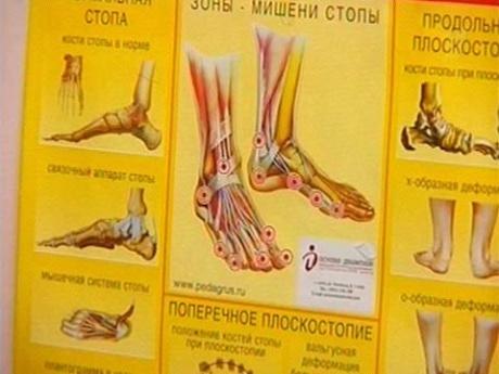 Средство для лечения вросшего ногтя на ногах
