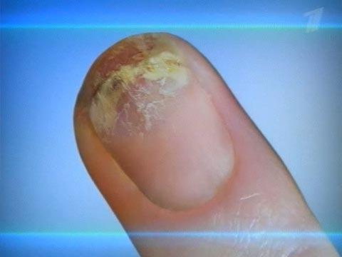 ... b ногтей /b экзифин кремы b грибок ногтей/b.