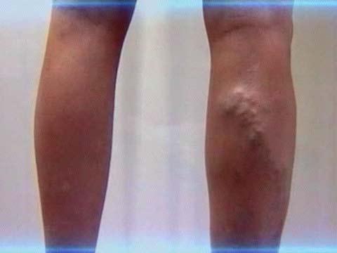 После операции кесарево отекли ноги