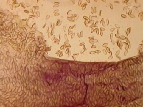 паразиты во рту человека как лечить