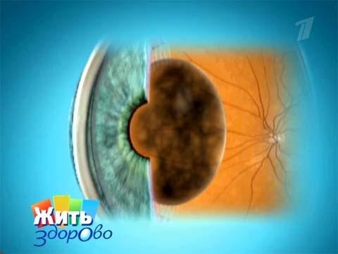 Как я восстановила зрение