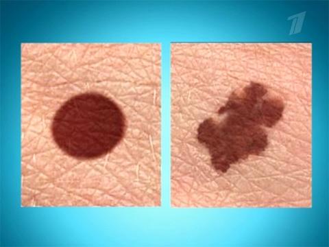 болезнь меланома фото начальная стадия