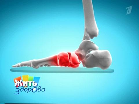 Болят ступни ног при беременности что делать