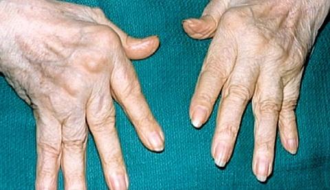 Упражнения при шейно-воротниковом остеохондрозе