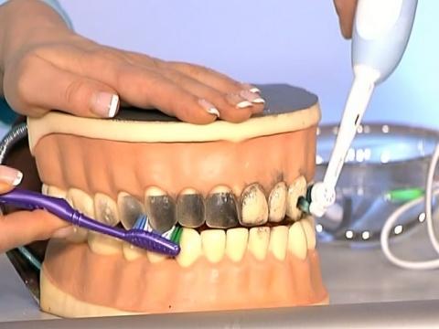 Электрическая зубная щетка при гингивите
