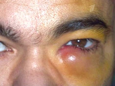 Symptoms eye infection adults