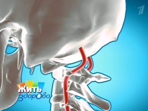 arterialnoy-gipertenzii-i-vertebrobazilyarnom-sindrome