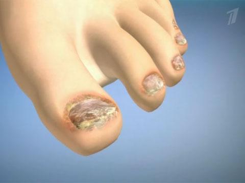 Эффективные недорогие таблетки от грибка ногтей на ногах