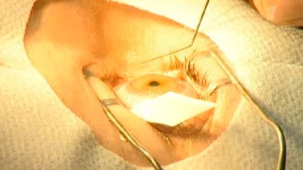 Как делается операция на глаза лазером