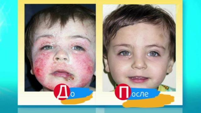 гороскоп лямблии и атопический дерматит у детей составлена