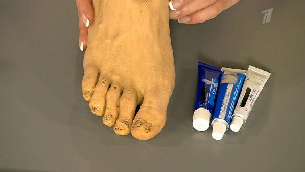 Препарат для лечения грибка пальцев ног