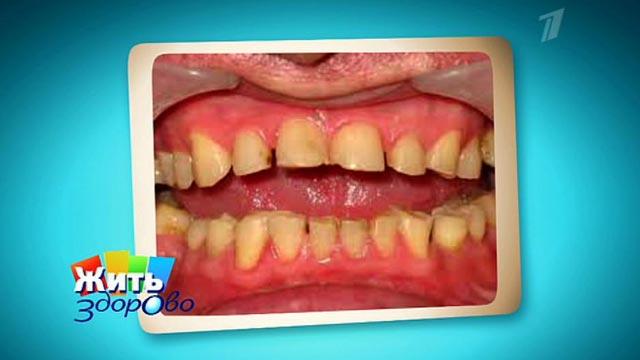 Причина зубы стачиваются