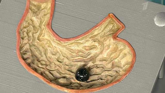 Фото как выглядит желудок