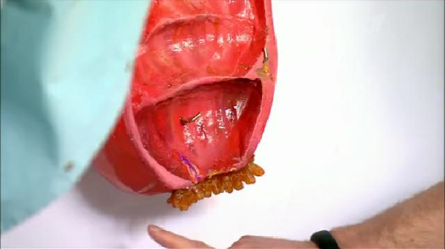 Крем от бородавок на половых органах