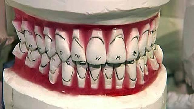 Как сделать прямые зубы