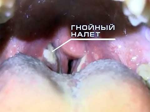 Ангина - микробное воспаление глоточных миндалин, на них образуется белый гнойный налет.  Боль в горле: фарингит или...