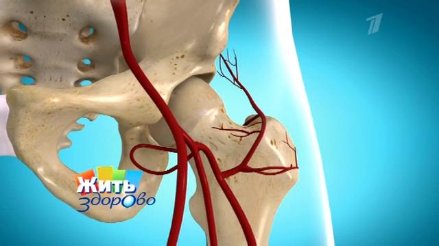 ...сустав состоит из головки бедренной кости и вертлужной впадины.