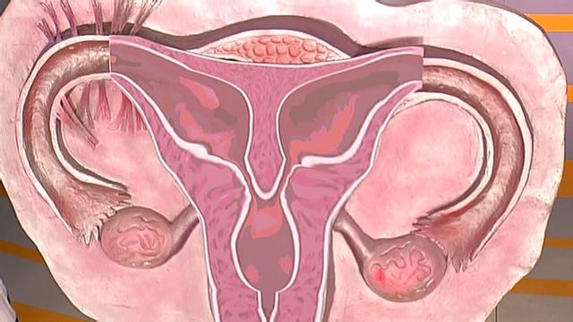 Как родить с миомой матки