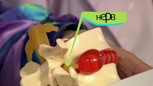 Здоровье - Проблема со здоровьем. Боль в спине с прострелом в ногу ...
