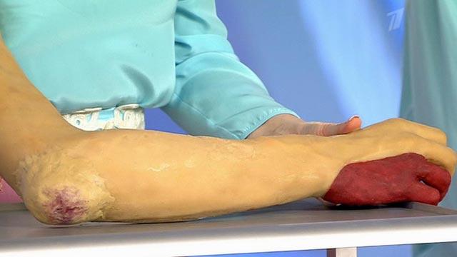 Симптомы сопровождающие ушиб ноги