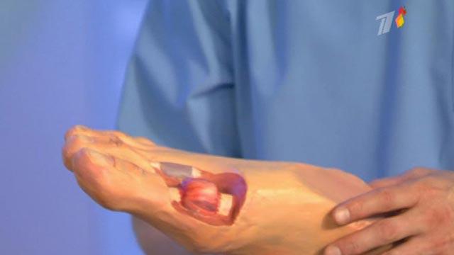 Симптомы косточки на ноге